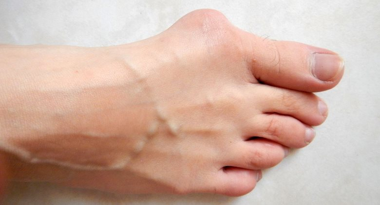 Oignon de pied orthopédie